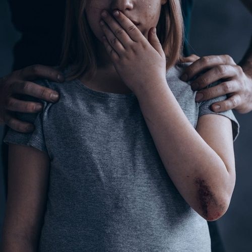Sexual Abuse of a Child